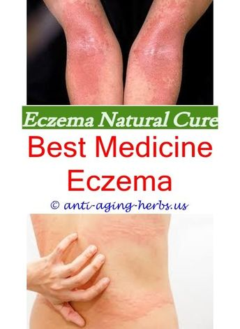 Eczema spot treatment Nummular eczema or ringworm pictures