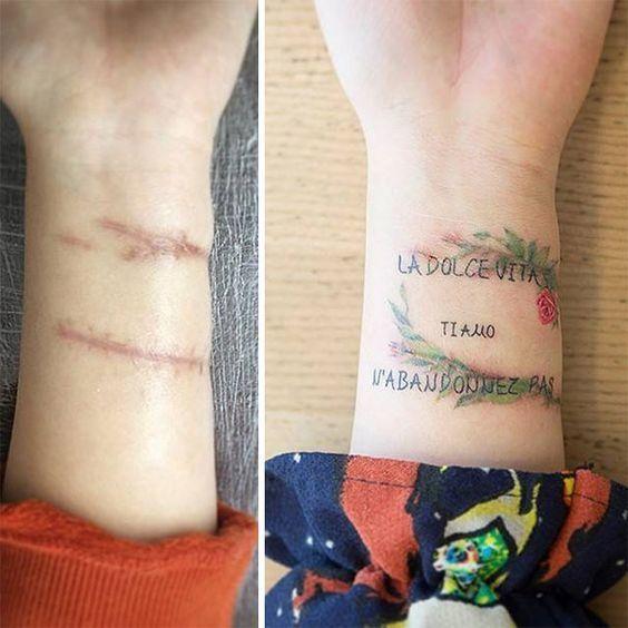 tatuaggi imperfezioni cutanee 11