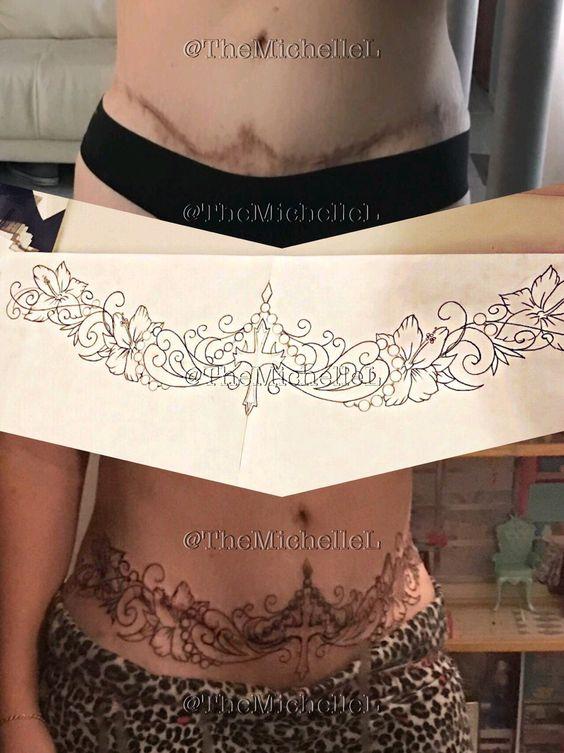 La cicatrice dello stomaco copre il tatuaggio. Tatuaggio cover up della sezione C. Fatto da Andy G Tattoo Shop a Lincoln NE. Tummy Tuck tattoo