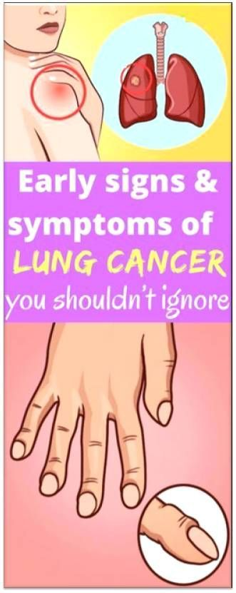 Early signs and symptoms of lung cancer you shouldn't ignore